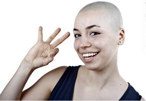 Alopecia Tv Amp Me Spark Movement